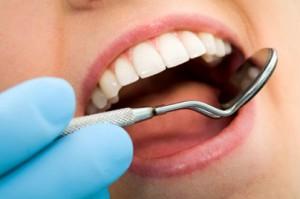 dientes-en-movimiento