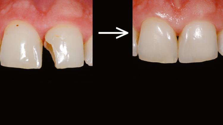 odontologia restauradora